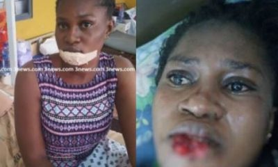 Photos: Nurse bites off the lower lip of her suspected rival